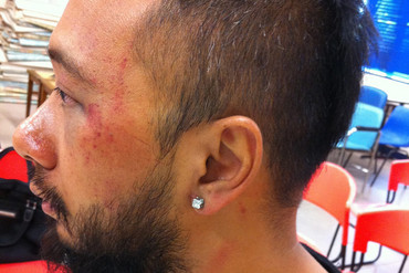Ken Tsang displaying injuries allegedly given to him by police (Photo: Supplied/Occupy Central Hong Kong)